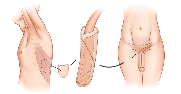 Перенос лоскута мышечной ткани на ствол пениса